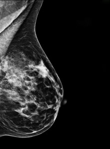 Digital-mammography-221x300